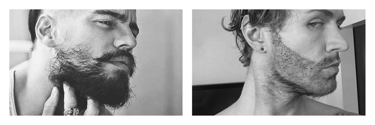 не растет борода причины