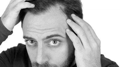 Стрижки для лысеющих мужчин: что делать, когда этот день настал